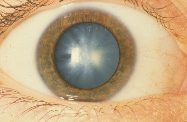 economical nonsurgical prevention of cataract